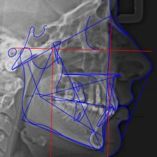 analisis cefalométrico